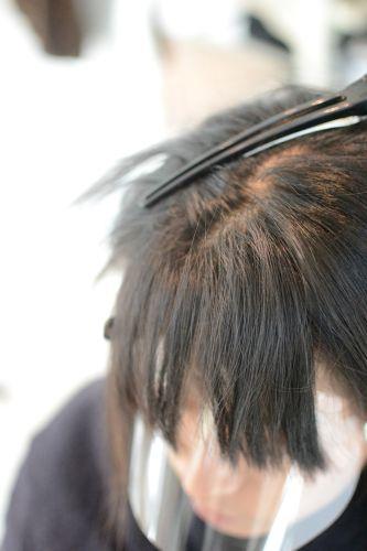 【縮毛矯正の失敗】根元折れの修正