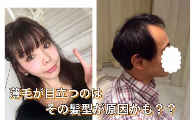 """""""薄毛""""が目立っているのはその髪型が原因かも!?"""