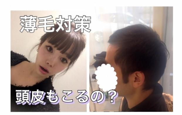 薄毛対策☆【Q&A】頭皮もこるの?!