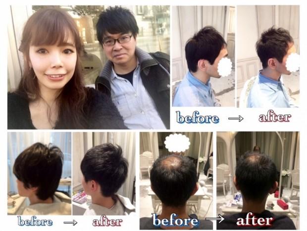 小沼あすか、美容師、メンズカット、メンズパーマ、薄毛、対策、人気、表参道、口コミ