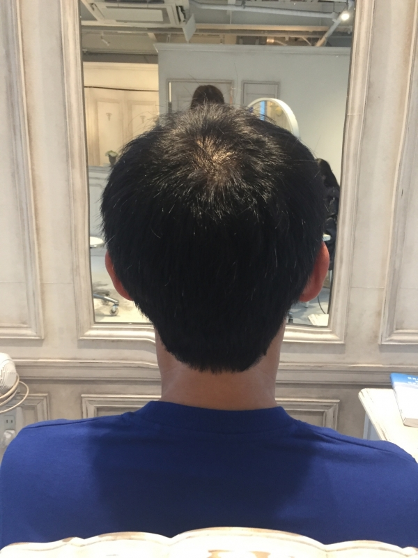 小沼あすか、AGA、円形型脱毛症、美容師、メンズカット、薄毛、対策、髪型、表参道、口コミ