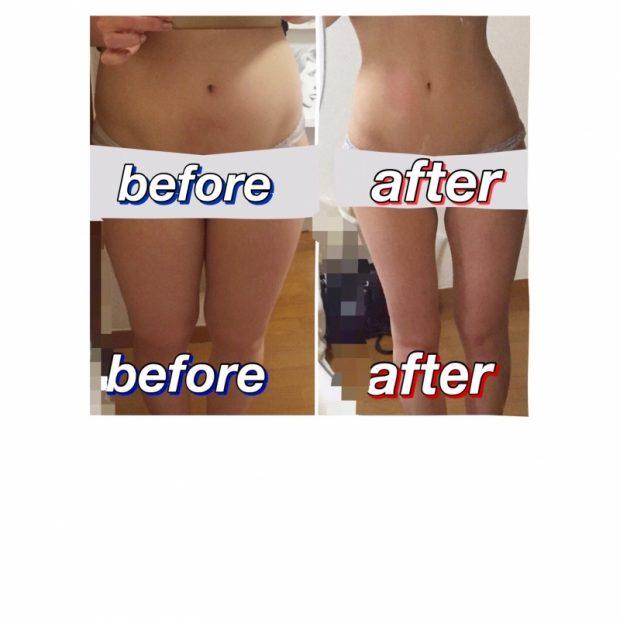 体質改善による6ヶ月でマイナス10キロしたお話。体質も薄毛も根本からの改善が大切。