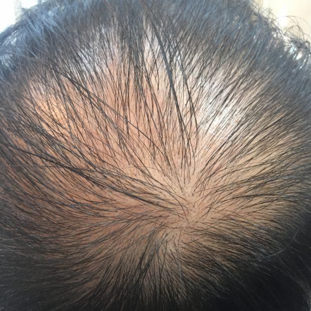 育毛剤を使わずに髪の毛を取り戻す方法がある!【薄毛改善育毛法】