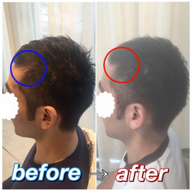 美容室での薄毛改善が可能な時代☆彡