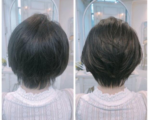 くせ毛のショートヘア。ハチが張って頭が四角くなるのを、内巻き縮毛矯正で解決。